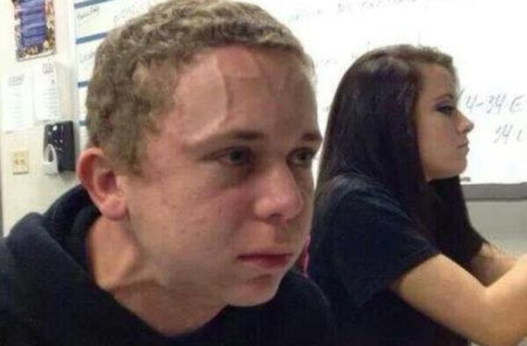 Trying not to fart