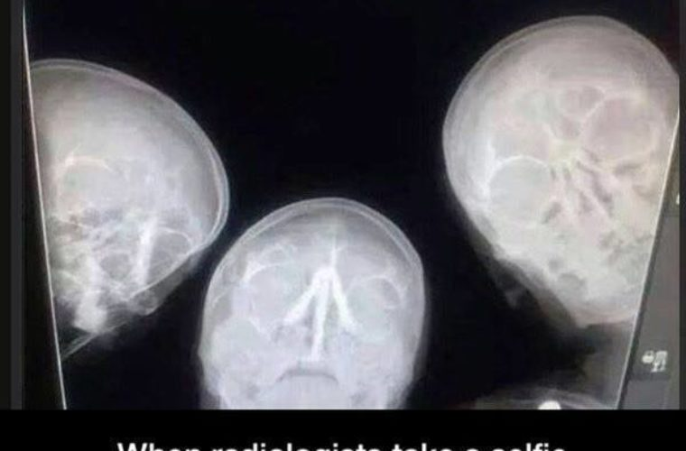 Funny Xray Tech Memes : X ray selfie funny pictures quotes memes funny images funny