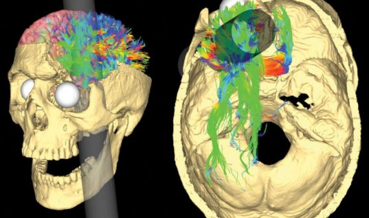 He Survived an Iron Rod Through His Brain — The Weird Story of Phineas Gage