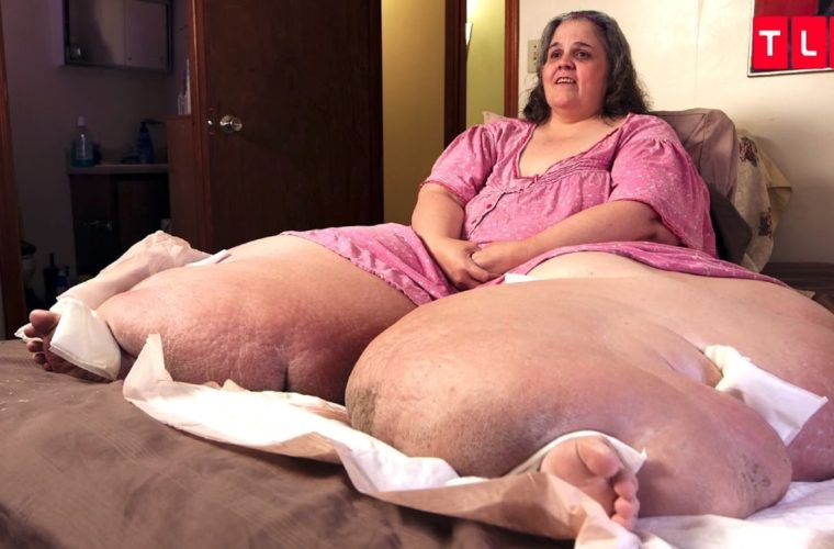 "You Won't Believe The Amazing ""After"" Photos From My 600 LB Life"