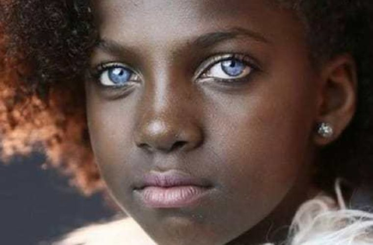 30 People Gifted with Beautiful Yet Strange Genetics That Must Be Seen to Be Believed!